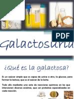 Galactosuria