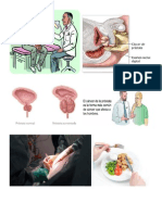 Cáncer Próstata