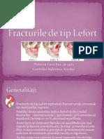 Fracturile de Tip Lefort