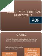 Cap 21 Caries y Enfermedad Periodontal