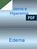 15969115 Edema e Hiperemia