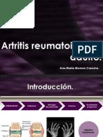 Artritis Reumatoide Del Adulto