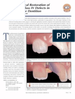 Trans-surgical Restoration of Extensive Class IV Defects in the Anterior Dentition