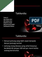 Takikardi