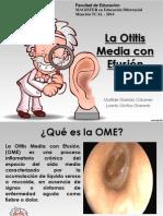 Otitis Media Efusión
