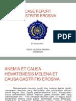 Anemia Et Causa Hematemesis Melena Et Causa Gastritis