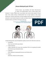 Pemeriksaan Radiografi Pada TB Paru
