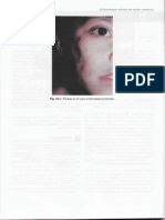[32] Lupus Eritematoso Profundo