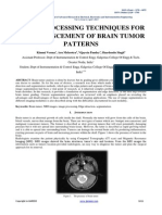 Brain tumor research