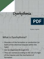 Dysrhythmia Powerpoint