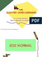 Ecg_ecg Dr Djellaoudji