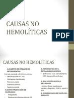 Causas No Hemolíticas