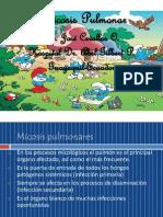 4-MICOSIS PULMONAR.ppt