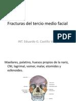 Fracturas Del Tercio Medio Facial