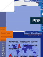 Cancer Esophagus