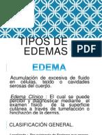 Tipos de Edemas