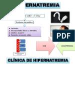 hipernatremia.pptx