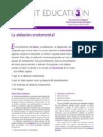 Ablacion Endometrial