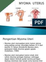 Power Point Myoma Uteri
