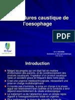 Les Brûlures caustique de l'oesophage.ppt