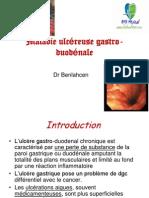 Maladie ulcéreuse gastro-duodénale.ppt