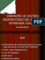 S D R 2 -14