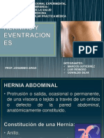 Hernias y Eventraciones