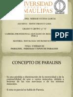 Exposicion Paralisis y Paresias