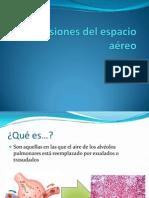 Lesiones del espacio aereo.pptx