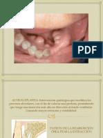 cirugiapreprotesica-121214153925-phpapp02