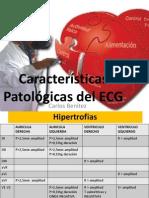 Características Patológicas Del ECG