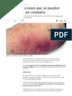 Cinco Infecciones Que Se Pueden Contraer en Un Vestuario - El Comercio Peru
