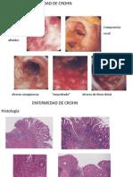 1.3.4 Enfermedad Inflamatoria Intestinal Pt2