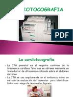 Cardio to Cog Rafi A