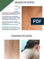 Psoriasis Derma Expo
