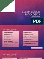 Sesión clínico radiológica