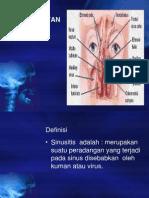 Sinusistis