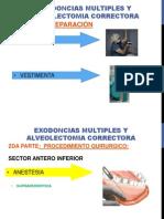 ALVEOLECTOMIA CORRECTORA