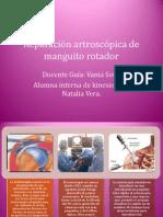 Artroscopia Hombro