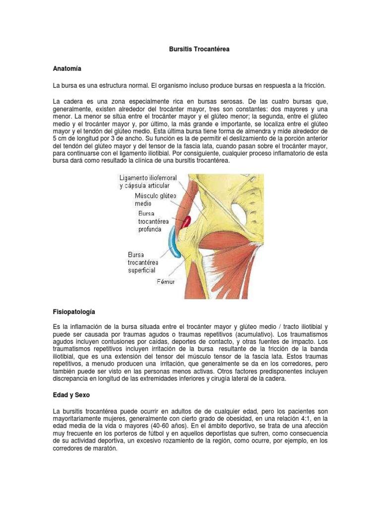 Bursitis Trocánterea