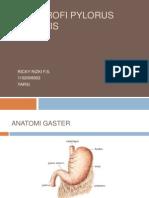 Hipertrofi Pylorus Stenosis (Referat Stase Radiologi)