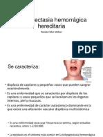 Telangiectasia Hemorrágica Hereditaria y SM
