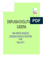 Displasia Evolutiva de Cadera