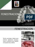 FENESTRACION cirugia maxilo 2013.ppt