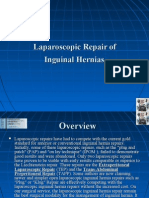 Laparoscopic Repair of Inguinal Hernias Description