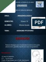 Adenoma Pituitario Imagenologia