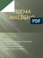 Enfermedades Infecciosas - Edema Maligno