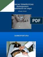 quimiopuntura catgut2