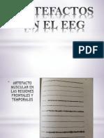 Artefactos en EEG