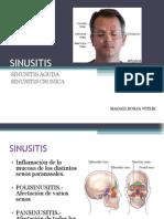 Sinusitis 1